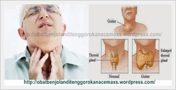 obat benjolan di tenggorokan